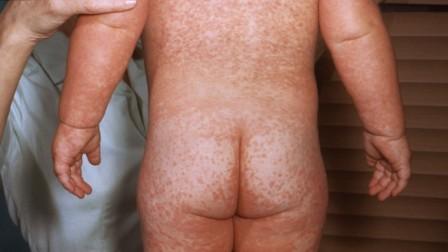 Корь у детей симптомы и лечение, профилактика   фото