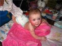 Атопический дерматит у детей, грудничка, лечение
