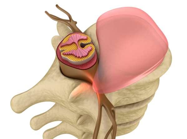 Лечение протрузии межпозвонкового диска: что предлагает клиника доктора Бобыря?