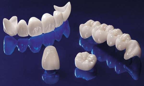 Керамические коронки – одно из лучших достижений современной стоматологии