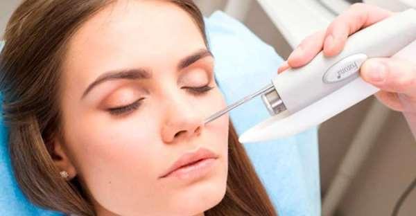 Лазерный доктор – эффективное лазерное удаление гемангиом на лице