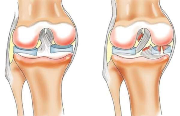 Употребляйте коллаген для защиты своих суставов и связок
