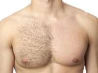 Лазерная эпиляция волос у мужчин – для тех, кто заботится о своем внешнем виде