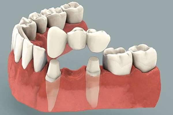Несъемное протезирование зубов и его основные преимущества