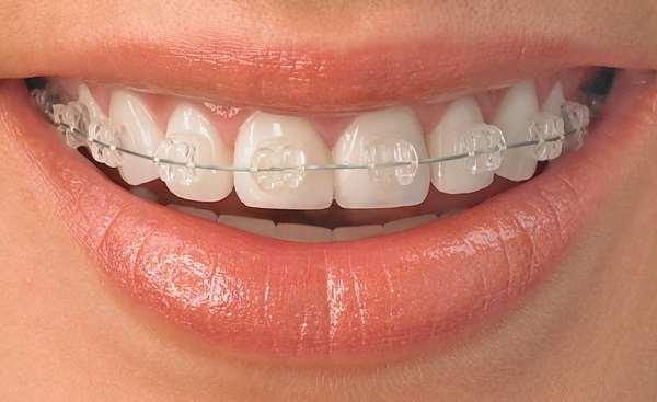 Причина искривления зубов
