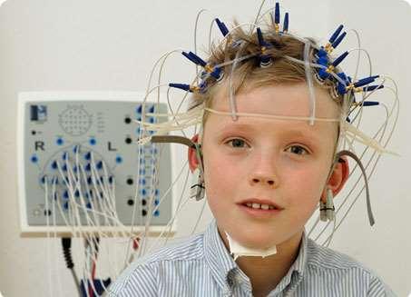 Видео ЭЭГ мониторинг: как происходит и когда применяется?