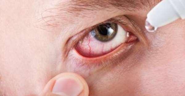 Что такое демодекс глаз и как его вылечить?