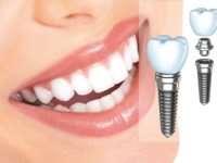 Современное протезирование зубов: что предполагает услуга