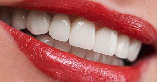 Какие способы имплантации зубов используются в современной стоматологии?