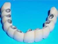 Зубные протезы из металлокерамики: основные преимущества и особенности