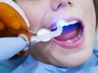 Лечение зубов лазером – достижение современной стоматологии