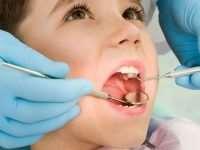 Методы профилактического лечения кариеса молочных зубов