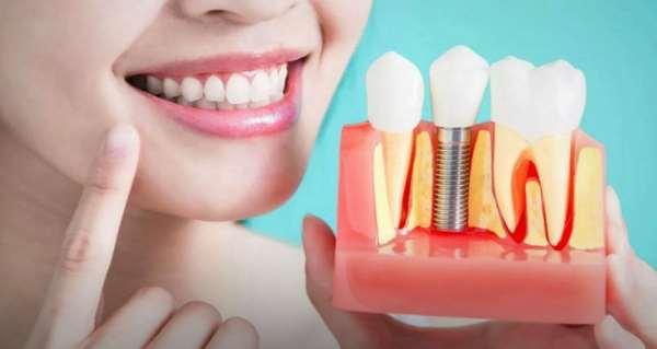 Протезирование зубов – лучший способ получить красивую улыбку