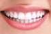 «Голд Медиум» — секрет красивой и белоснежной улыбки