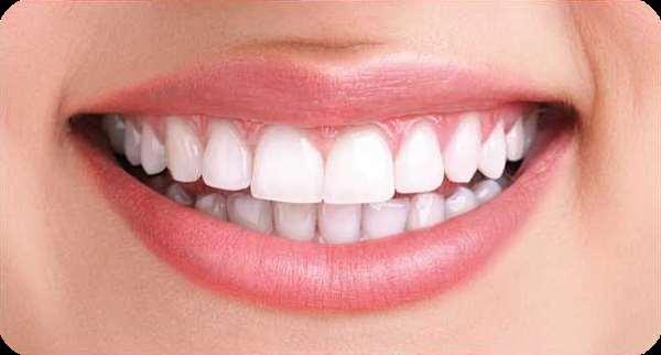 «Голд Медиум»   секрет красивой и белоснежной улыбки