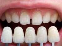 Правила ухода за современными винирами на зубы и срок их службы