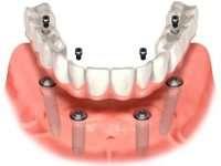 Показания к протезированию зубов ALL-ON-4